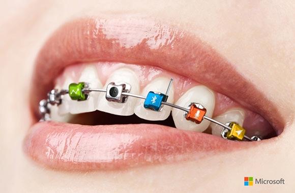 ms-braces