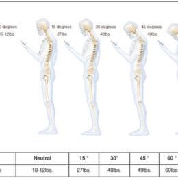 Falsche Handy-Nutzung schädigt unsere Halswirbelsäule