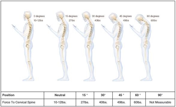 cervical-spine-study