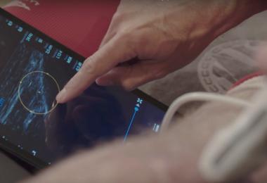 PSV Eindhoven nutzt mobile Ultraschall-Lösung