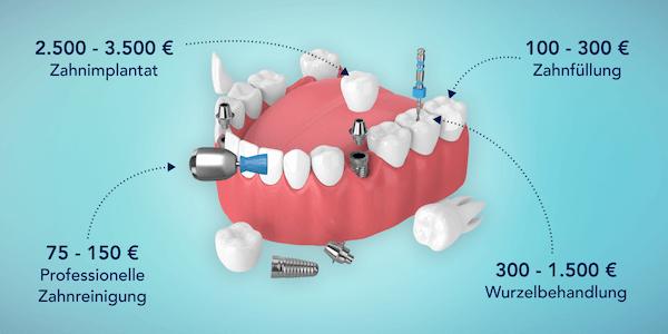 Kostenbeispiele ottonova Zahnzusatzversicherung